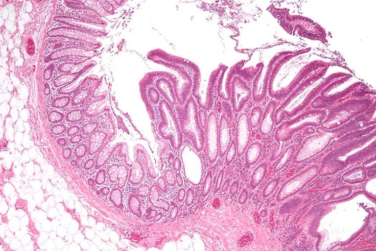 Ворсинчатая опухоль прямой кишки