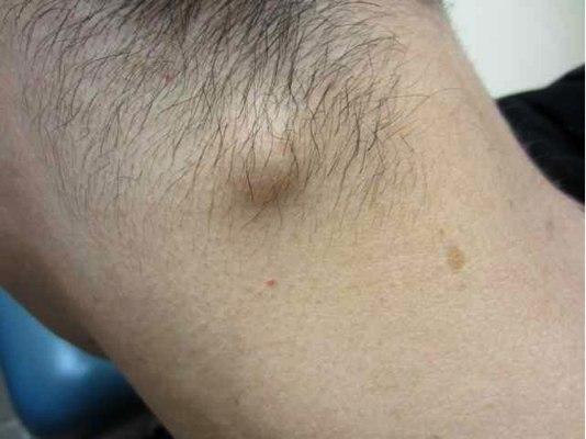 аллергия на дрожжи фото